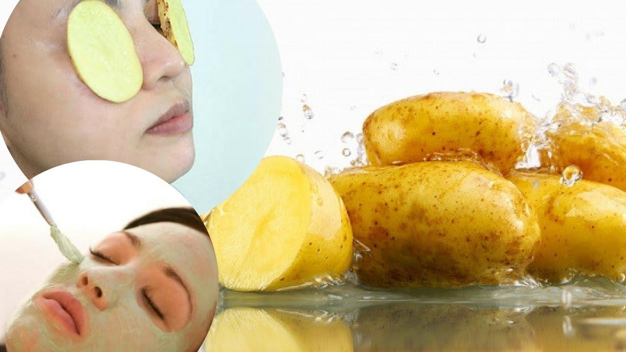 Chăm sóc da mụn bằng khoai tây