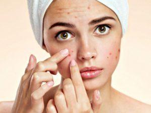 5 cách chăm sóc da mụn hiệu quả từ thiên nhiên