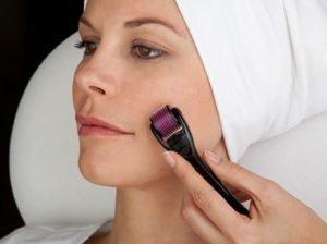 4 lưu ý chăm sóc da sau lăn kim cần thực hiện nghiêm túc